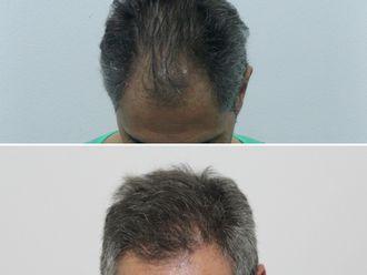 Alopecia - 625921