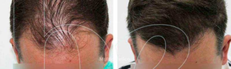 Resultado de injerto capilar antes/ después de paciente anónimo 1.jpg