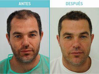 Injerto de pelo antes y después