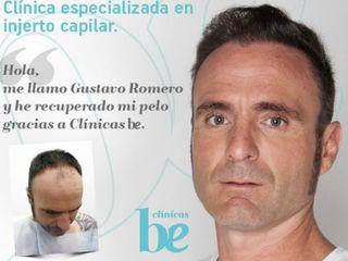 Gustavo Romero, Injerto de pelo