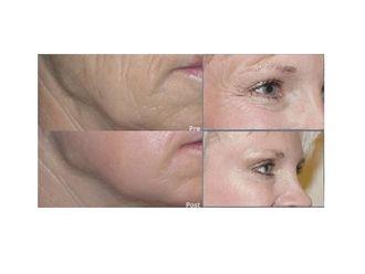 Rejuvenecimiento facial-444862