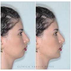 Antes y después Aumento de mentón - Clínica Varela Reyes