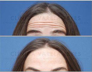 Antes y después Bótox - Clínica Varela Reyes
