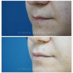Antes y después Aumento de labios - Clínica Varela Reyes