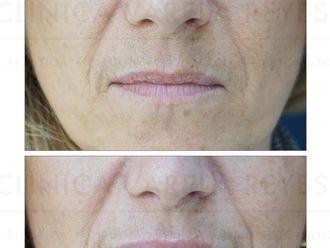 Aumento labios - 738366