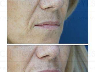 Aumento labios - 738367