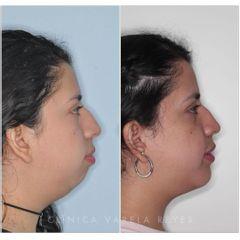 Antes y después Bichectomía - Clínica Varela Reyes