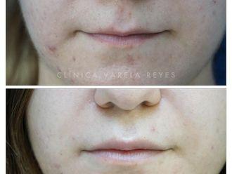 Aumento labios - 738372