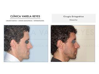 Antes y después Cirugía maxilofacial - Clínica Varela Reyes