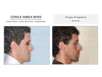 Cirugía maxilofacial-738375