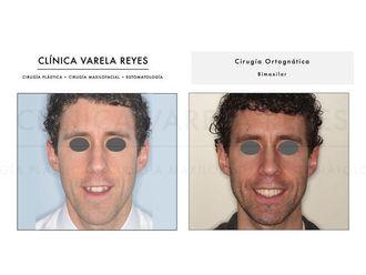 Cirugía maxilofacial-738379