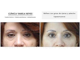 Antes y después Eliminación de ojeras - Clínica Varela Reyes
