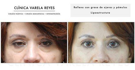 Eliminación de ojeras - Clínica Varela Reyes