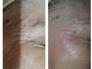 Mesoterapia contorno ojos