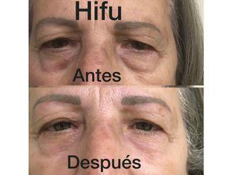 HIFU - 632997