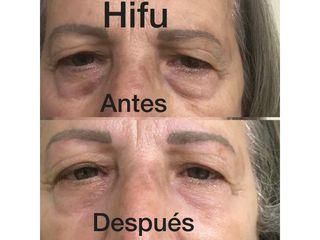 Hifu antes y después