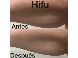 Hifu brazos