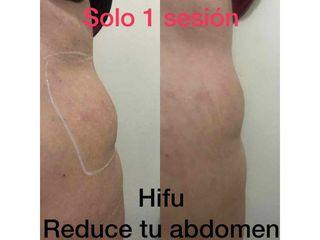 Hifu abdomen