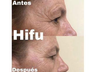 HIFU - 633001