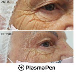 Blefaroplastia con PlasmaPen - Spa y Belleza Ana Jurado