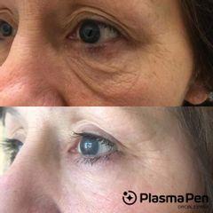 Eliminación de ojeras - Spa y Belleza Ana Jurado
