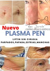 Plasma Pen - Spa y Belleza Ana Jurado