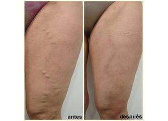 Antes y después Esclerosis con espuma