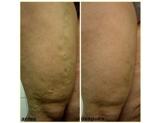 Tratamiento varices-397897