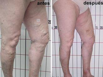 Cirugía estética-500283