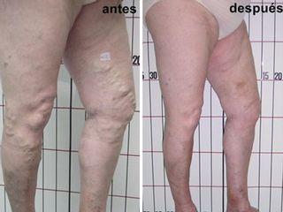Antes y después Eliminación de varices