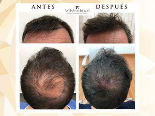 Antes y después Tratamiento Capilar ViMedical
