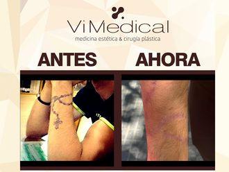 Eliminación de tatuajes - 643569