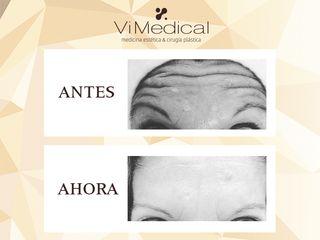 Botox en región frontal, una gran alternativa para corrección de arrugas