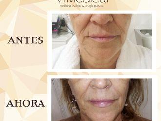 Rejuvenecimiento facial - 644244
