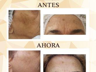 Rejuvenecimiento facial - 644245