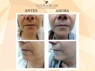 Antes y después Tratamiento Estético Facial Antiedad