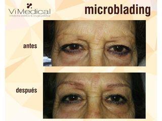 Antes y después Microblading