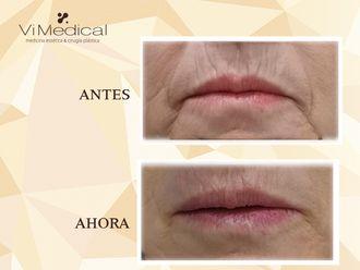 Rejuvenecimiento facial-647225