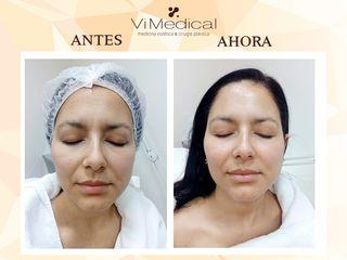 Antes y Despues Triactive Pro. Tratamiento indicado para pieles pálidas, cansadas y secas.
