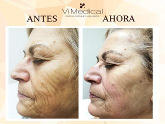 Rejuvenecimiento facial-650151