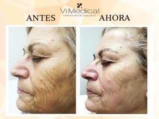 Antes y Después RENAISSANCE. Tratamiento especial para piel madura durante la menopausia