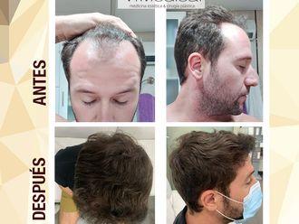 Tratamiento capilar - 698376