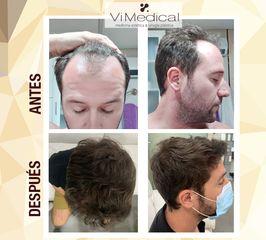 Antes y después trasplante capilar - VIMEDICAL