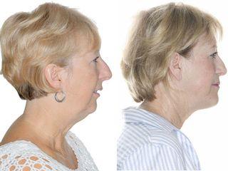 Antes y después Caso de cirugía ortognática para apnea del sueño