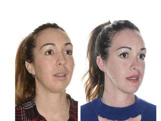 Antes y después Cirugía ortognática bimaxilar con mentoplastia y rinoplastia.