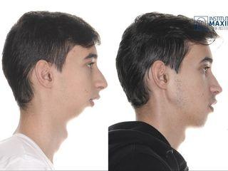 Antes y después Cirugía ortognática bimaxilar con septoplastia y mentoplastia