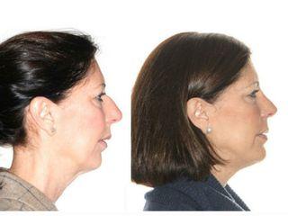 Antes y después Cirugía ortognática bimaxilar con rinoplastia.
