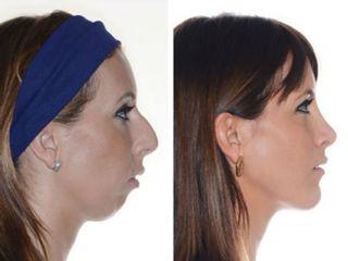 Antes y después Cirugía ortognática con mentoplastia y rinoplastia.