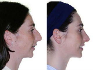 Antes y después Cirugía ortognática con rinoplastia.