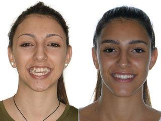 Antes y después Cirugía ortognática + Mentoplastia
